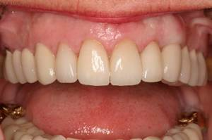 Esthetic Crown Lengthening, Post Op